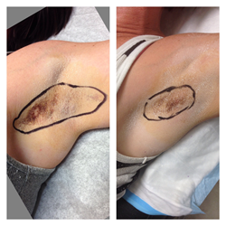 Sweat/Hyperhidrosis Treated with Infini