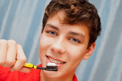 A boy with braces on his teeth holds up a toothbrush with a toothpaste.