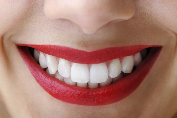 Smiling Red Lips with white teeth - Invisalign