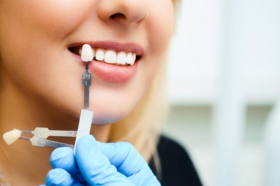 Matching the shades of teeth for veneer treatment