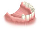 Before Dental Implant Placement In Houston, TX