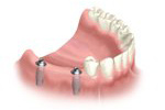 Installing Dental Implants In Houston, TX