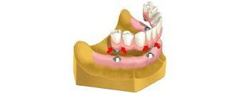 Teeth Replacement Options In Houston, TX