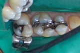 Before picture of teeth with metal fillings | Composite fillings in Portland, OR page