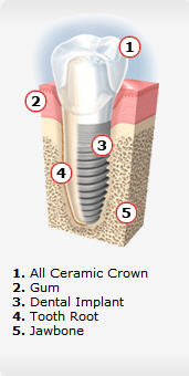 Dental implants in Portland