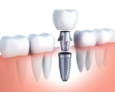 3D illustration of dental implants