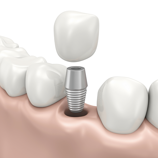 Picture of dental implants in Indianapolis