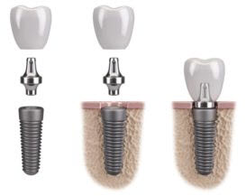 Dental Implants in Post Falls