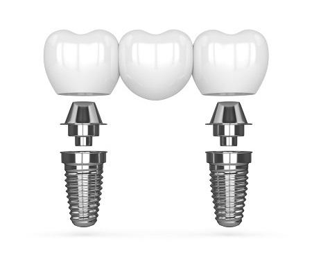 replace missing teeth with implants and bridges