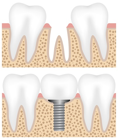 Illustration showing the dental implant placement with crown