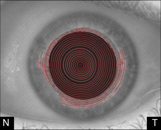 Placido image reflected on the cornea highlighted in red
