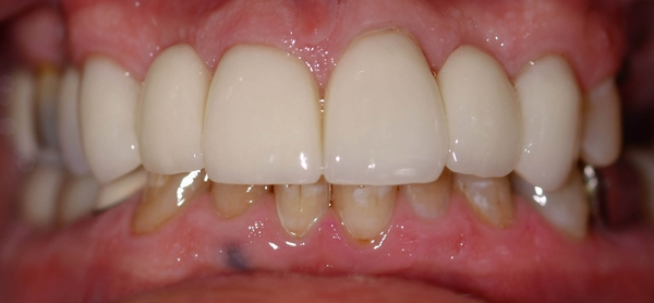 Carmichael dentist, cosmetic dentistry, after porcelain crowns
