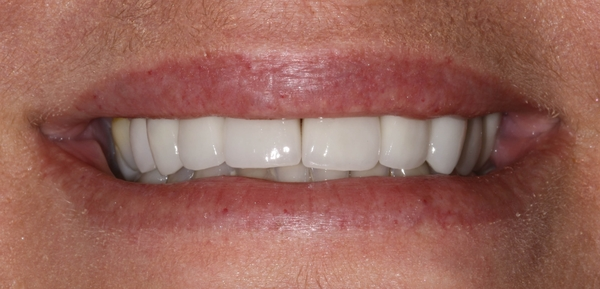 carmichael dentist cosmetic dentistry after porcelain crowns