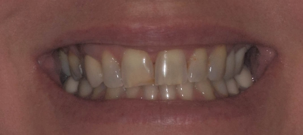 Carmichael dentist cosmetic dentistry before porcelain crowns