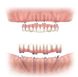 All-On-Four Dental Implants Jaw Graphic
