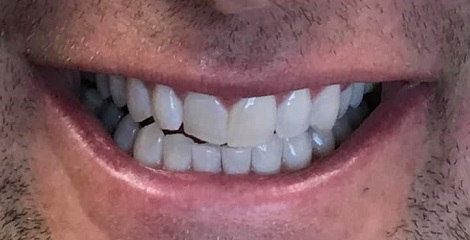 Contact Dr. Theodore Filandrianos to schedule your appointment to get Zoom! Whitening in Newton, MA.