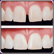 New York City Cosmetic Dentist Janys Gelberg, DDS specializes in Porcelain Veneers