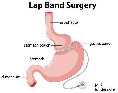 Lap Band Surgery Diagram illustration