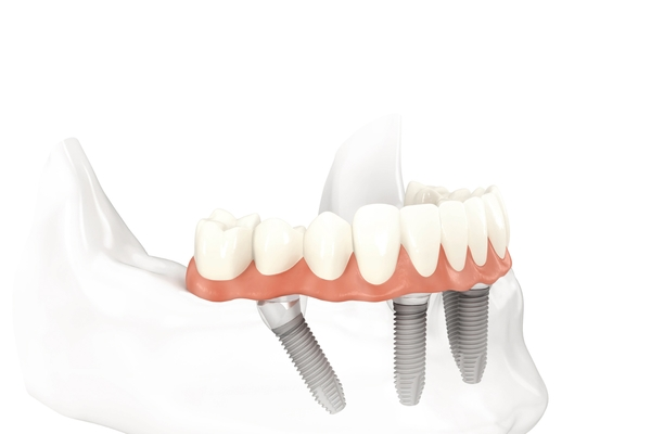 All-on-4-Implant-Dentistry