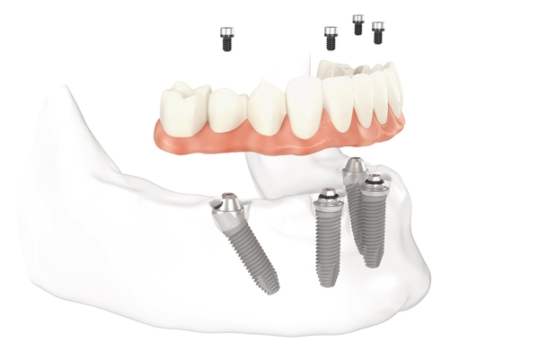 All-on-4-Dental-Implants-Woodland-Hills