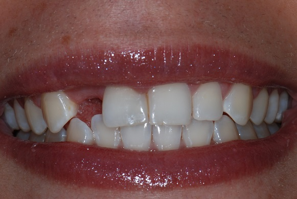 dental implants by dr. cyrus bandary - before shot