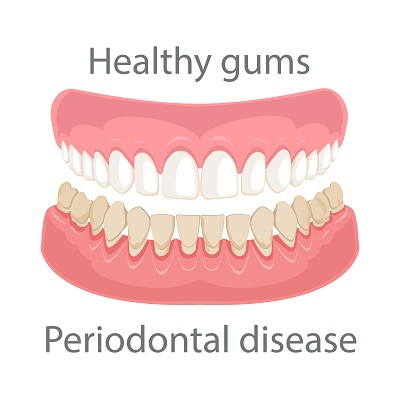 concept image of healthy gums and periodontal disease
