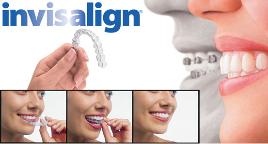 Invisalign® clear aligners in our San Antonio office