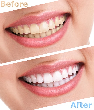 before and after shot of professional teeth whitening
