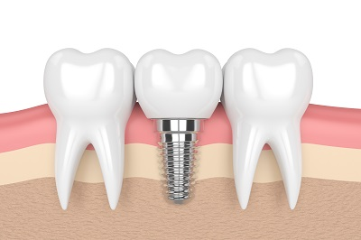 3D render of teeth and dental implant