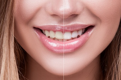 Close-up Female Teeth Whitening Before and After