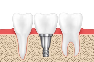 Dental human implant illustration