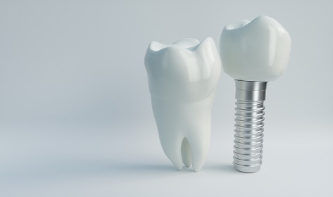 tooth model next to dental implant