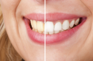 Teeth Whitening in Sacramento and Roseville