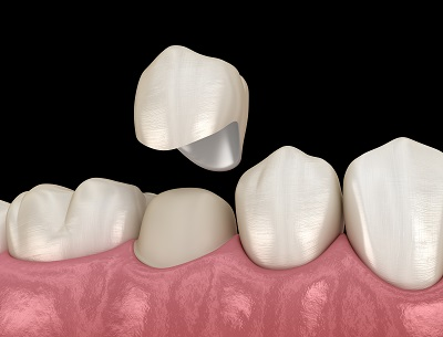 3D illustration of dental crown being placed on premolar tooth