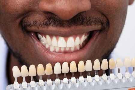 close up of african american man choosing correct shade for veneers