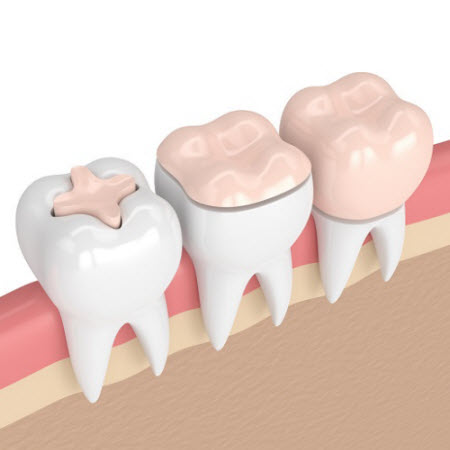3D render of tooth with fillings, onlays, and crown
