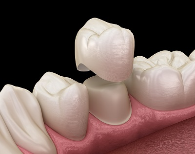dental crowns cover and protect teeth in Sacramento, CA