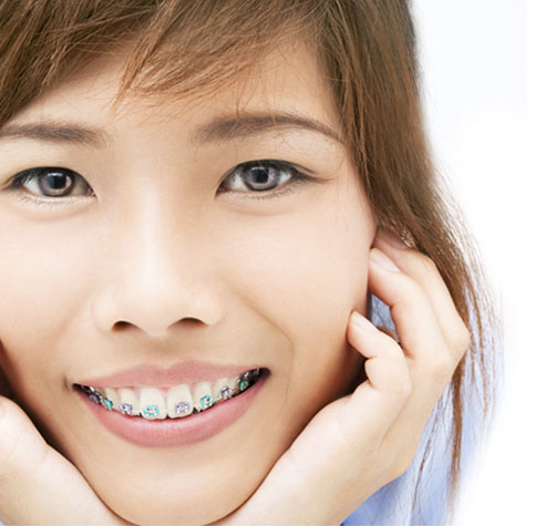 Care Orthodontics Patient Feedback