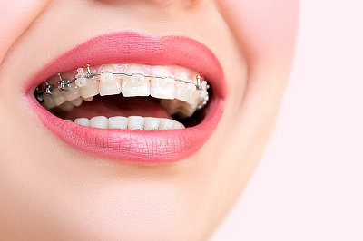 Adult Braces in San Jose | Dr. Nancy Phan | Care Orthodontics