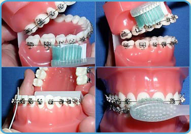Braces Maintenance in San Jose - Cleaning & More