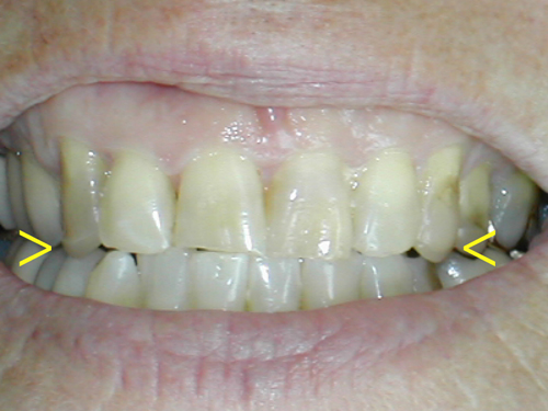 Bruxer, Bruxism, clenching my teeth, grinding my teeth, grinding teeth, chipped teeth, cuspid protection, normal bite, healthy teeth, Dr Neil McLeod, West Hollywood Dentist, Hollywood Dentist, Los Angeles Dentist, Beverly Hills Dentist