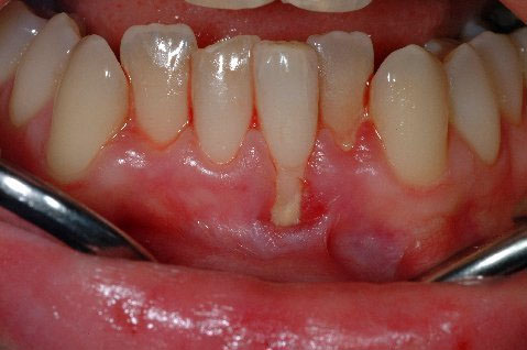 Root coverage, replacing gum tissue, grafting gum back