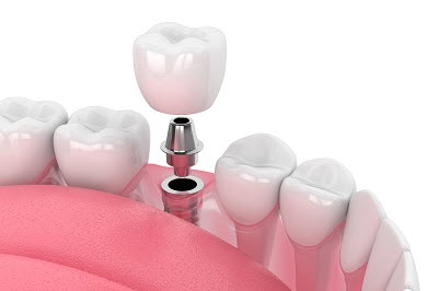 3d render of dental implant with crown