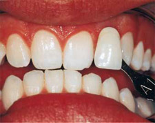 AFTER Teeth Bleaching and Whitening - New Orleans