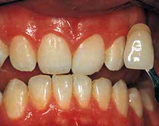 BEFORE Teeth Bleaching and Whitening - New Orleans