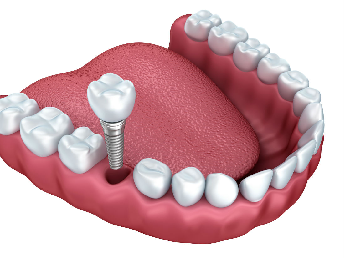 Dental Implants Tracy CA