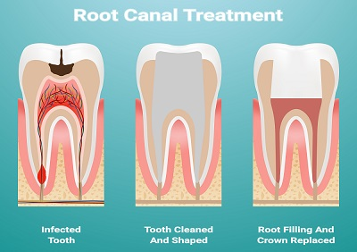 diagram of root canal therapy