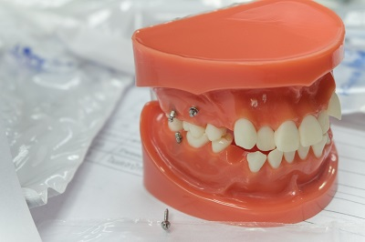 mini-implants in tooth model