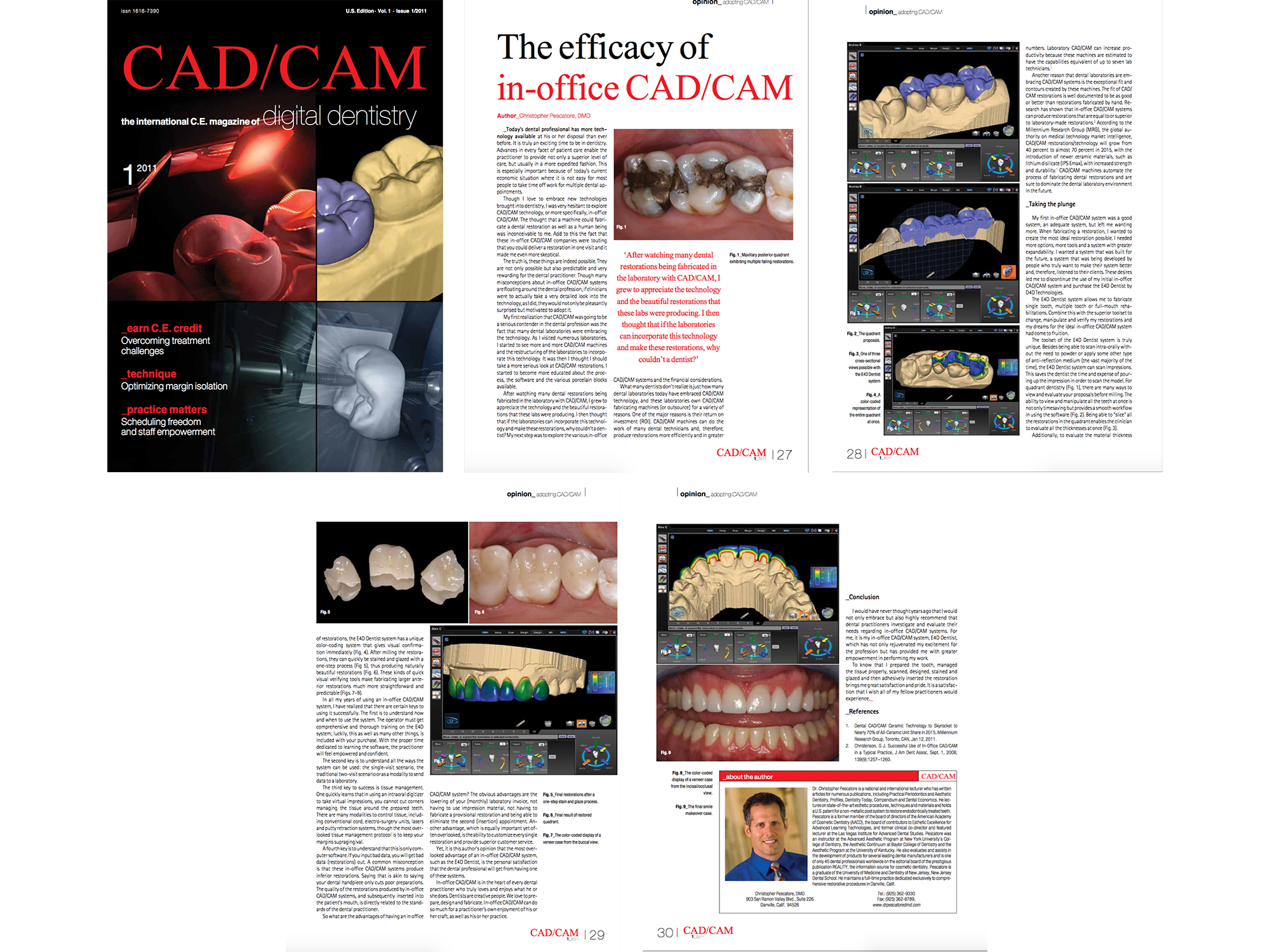 Dr. Pescatore Article in CAD/CAM Magazine