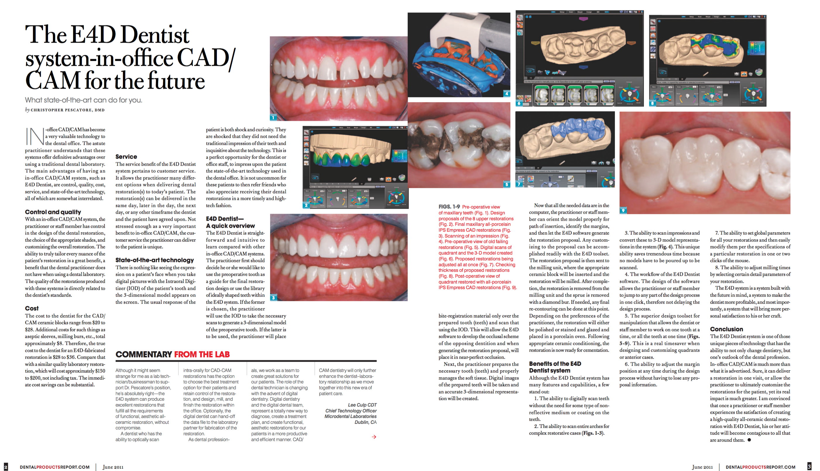 Dental Products Report Article by Dr. Pescatore
